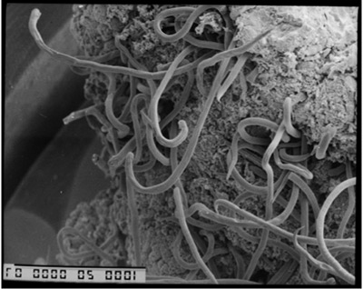 Graham_strongyle_nematode_400