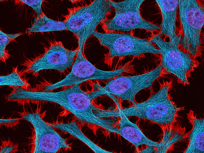 hela-cells-fluorescence.jpg